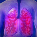 「結核」は根治可能なはずが・・・~免疫力が大きく関係!?諸外国とも比較~